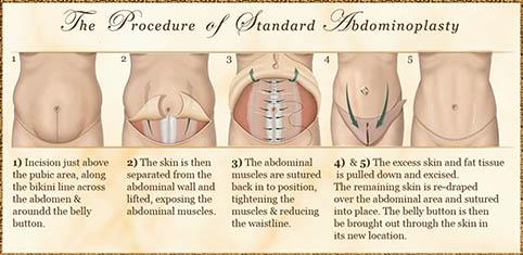 addominoplastica