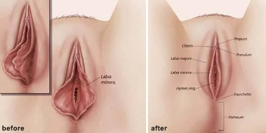 chirurgia intima femminile