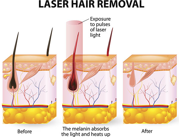 Dott. Juri Tassinari - epilazione laser