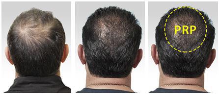 Dott. Juri Tassinari - PRP ricrescita capelli