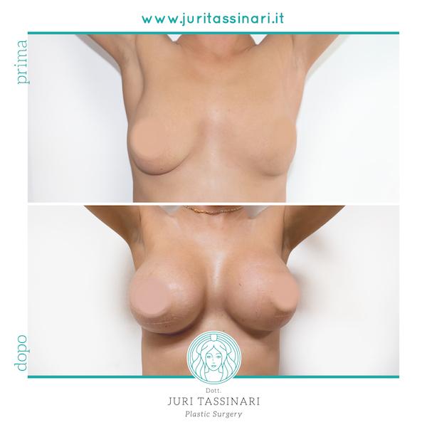 Chirurgia Estetica Mastoplastica Additiva