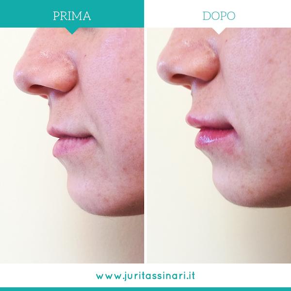 Chirurgia Estetica Filler Labbra