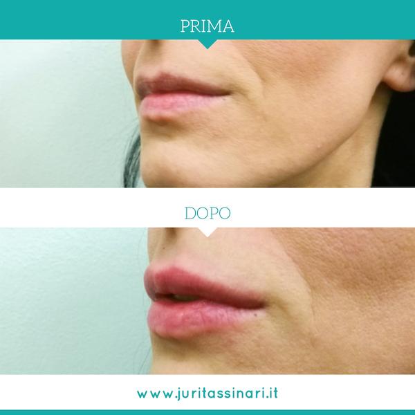 Chirurgia estetica - Filler labbra