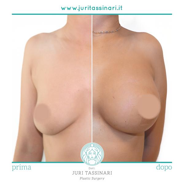 Chirurgia Estetica Mastoplastica