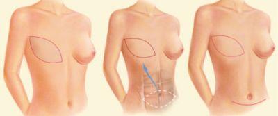 Ricostruzione mammaria